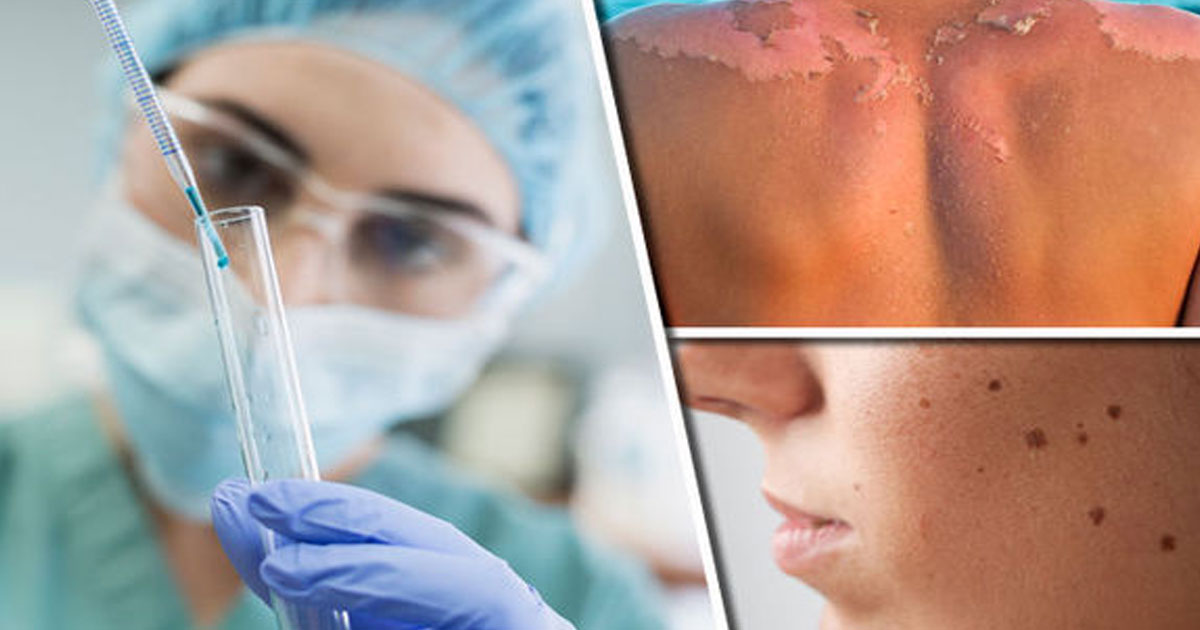 The-Latest-Melanoma-Drug-Could-Possible-Destroy-Skin-Cancer