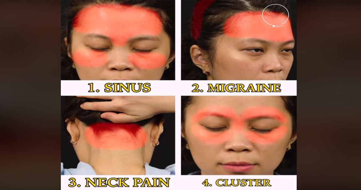 Alleviate-Migraine-and-Headache-Through-Acupressure-Techniques