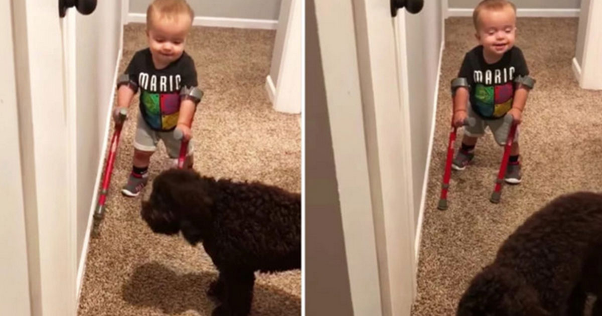 Little-Boy-with-Spina-Bifida-Shows-Off-His-New-Crutches